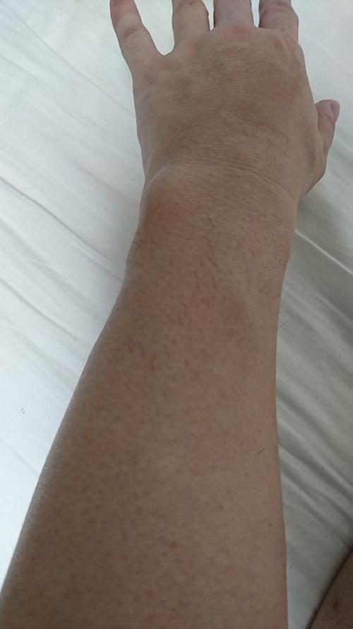 ケノン腕1ヶ月後